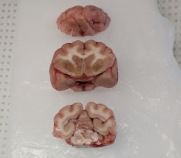 brain blocks